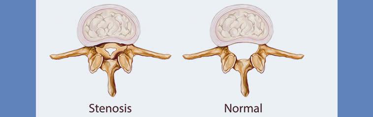 Estenosis del conducto vertebral en varios niveles